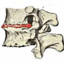 Осложнение остеохондроза