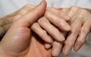 От чего растут косточки на пальцах рук