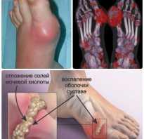 Подагра на ноге лечение