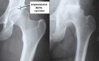 Жгучая боль в бедре левой ноги