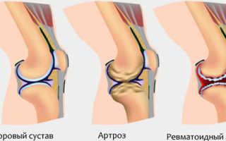 Эндопротезирование коленного сустава видео операции