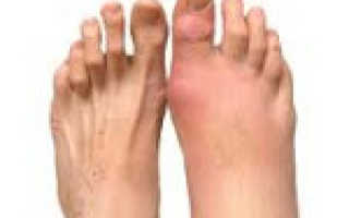 Посттравматический артрит стопы