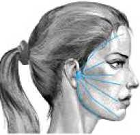 Неврит лицевого нерва от чего бывает