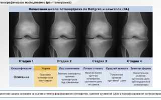 Левосторонний гонартроз 2 степени коленного сустава