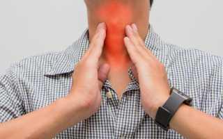 Сухой кашель и боль в горле без температуры чем лечить