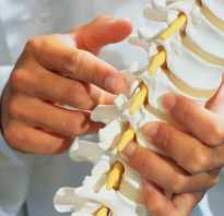 Перелом грудных позвонков лечение