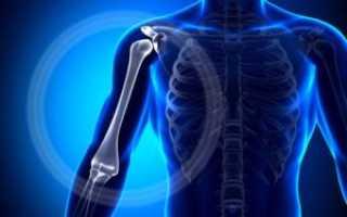 Сколько заживает перелом плеча
