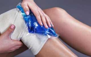 Разволокнена передняя крестообразная связка коленного сустава