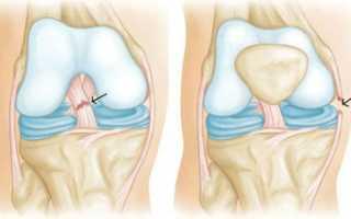 Разрыв крестообразных связок коленного сустава