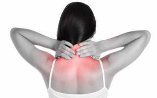 Цервикокраниалгия симптомы лечение