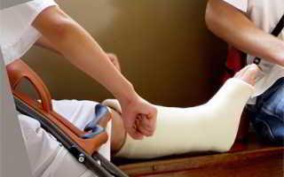 Признаки сломанной ноги