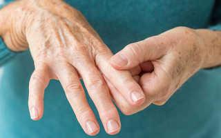 Артрит воспаление суставов лечение