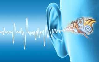 Постоянный шум в ухе
