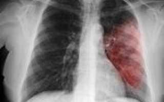 Пневмония левого легкого (левосторонняя) — признаки, как лечить у детей и взрослых