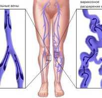Висцеральная остеопатия при варикозе