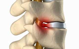 Как избавиться от остеофитов в позвоночнике