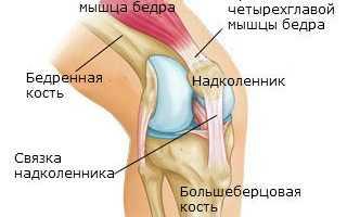 Привычный вывих колена