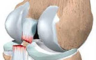 Повреждение коллатеральной связки коленного сустава