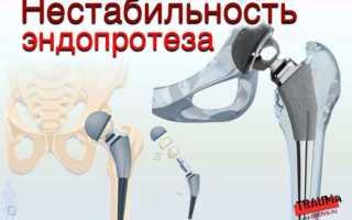 Признаки расшатывания эндопротеза тазобедренного сустава