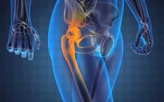 Растяжение тазобедренной мышцы