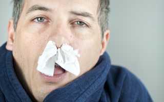 Желтые сопли у взрослых — причины и методы лечения