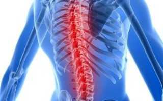 Лечение остеохондроза в нижнем новгороде