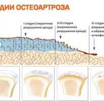 Первичный остеоартроз лечение