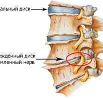 Позвоночник и суставы