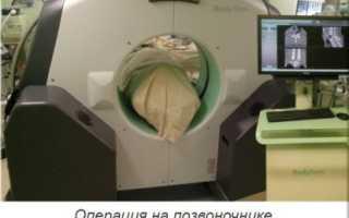 Спинальная хирургия москва