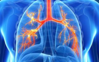 Сколько дней лечат воспаление легких — что влияет на сроки выздоровления