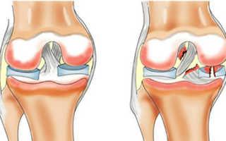 Сколько заживает разрыв связок коленного сустава