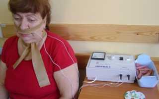 Электрофорез с лидазой как делают