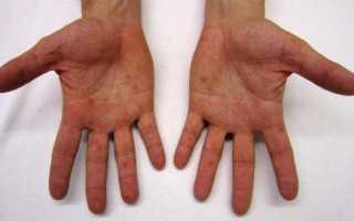 Сыпь на ногах и руках у ребенка температура и боль в горле