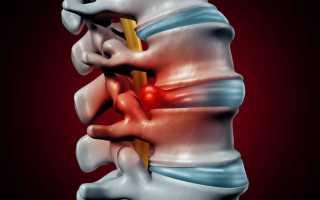Лечение грыж позвоночника