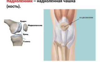 Удаление коленной чашечки