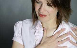 Боль в грудине слева причины у женщин