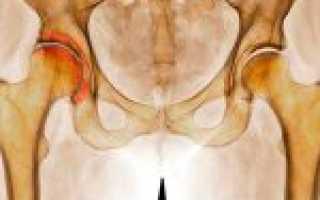 Деформирующий артроз тазобедренных суставов