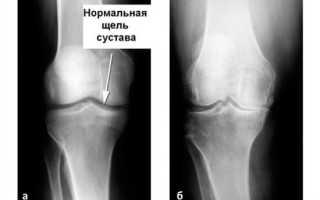 Боль в правом колене с внешней стороны