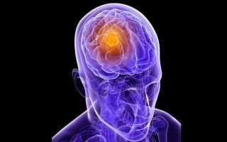 Метастазы головного мозга лечение