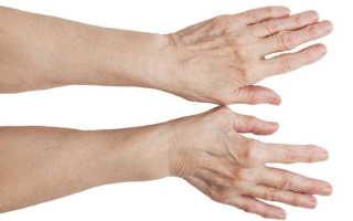 Шишка на суставе пальца руки