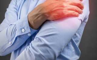 Почему болят мышцы плеча