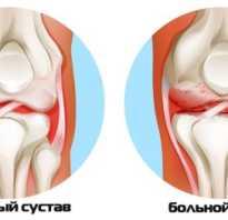 Компрессы для лечения артрита