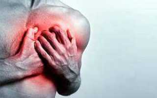 Межреберная невралгия.симптомы