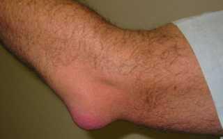 Воспаление мыщелка локтевого сустава
