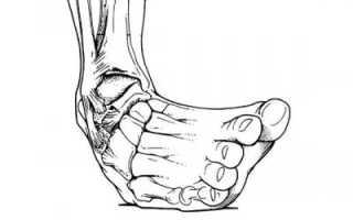 Чем лечить вывих ноги в домашних условиях