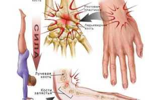 Лечение растяжения связок кисти руки