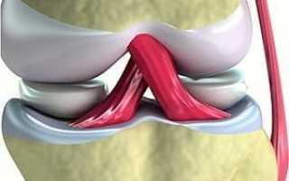 Стоимость операции крестообразной связки коленного сустава