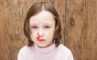 У ребенка температура боль в горле и кровь из носа