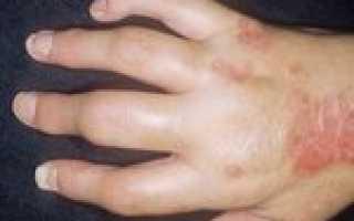 Аллергический артрит лечение