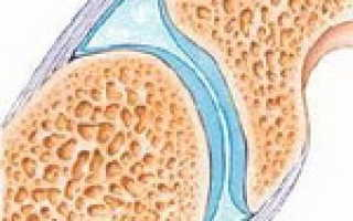 Как поддержать суставы при артрозе